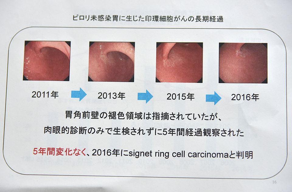 ピロリ未感染胃に生じた印環細胞がんの経過