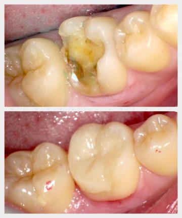 大臼歯のレジン修復