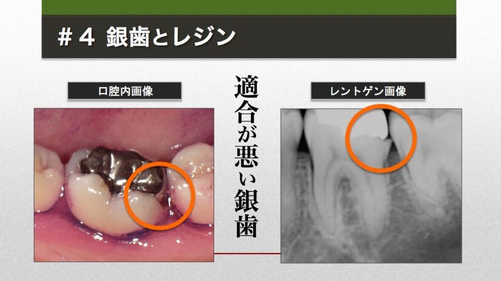 約10年前に受けたという銀歯治療。不適合な銀歯の下では二次う蝕が進んでいた。隣の歯も倒れこんできている。(C)MICHIHIKO IWASAWA