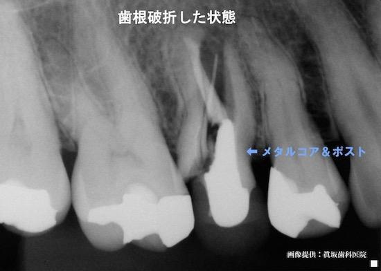 歯根破折した歯
