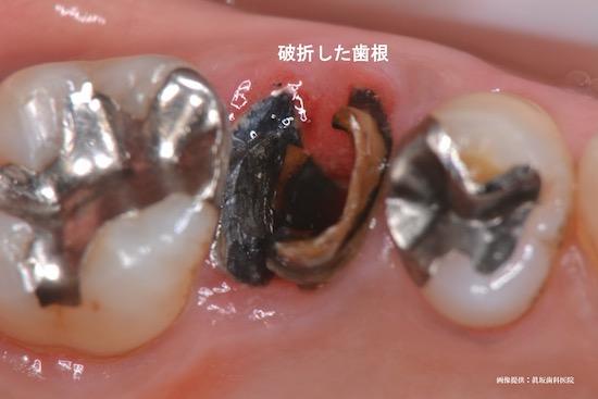 抜歯と告げられるケース