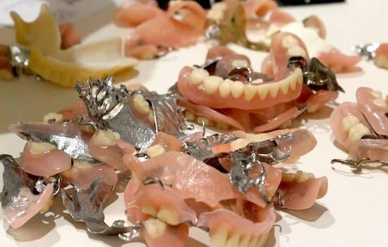 入れ歯の装着感に悩む患者は多い。