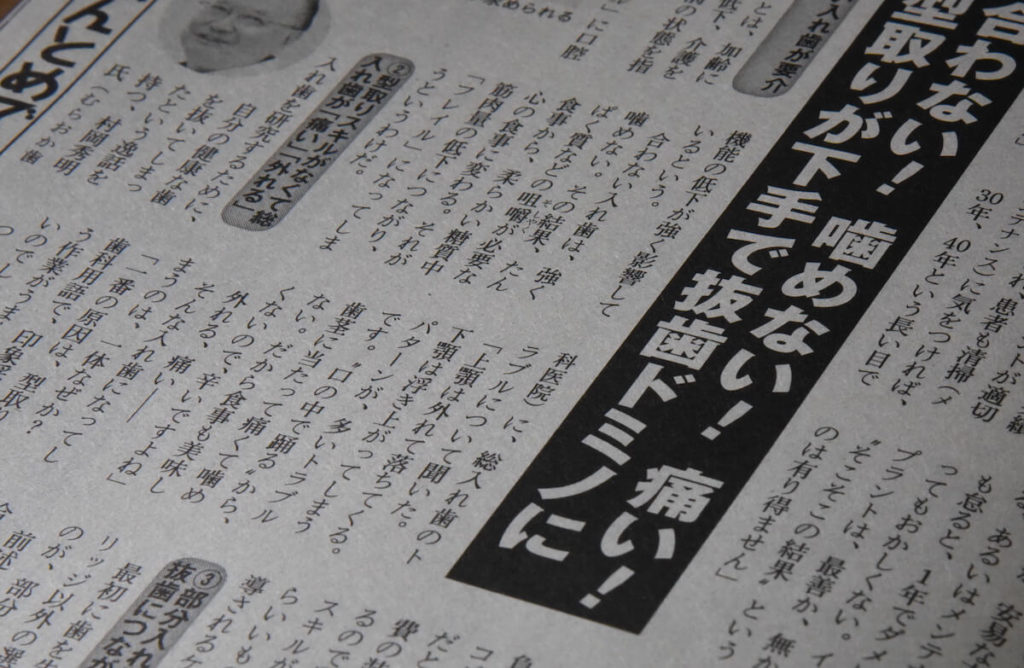 誤った知識や不適切な治療によって引き起こされる「抜歯ドミノ」(C)MICHIHIKO IWASAWA
