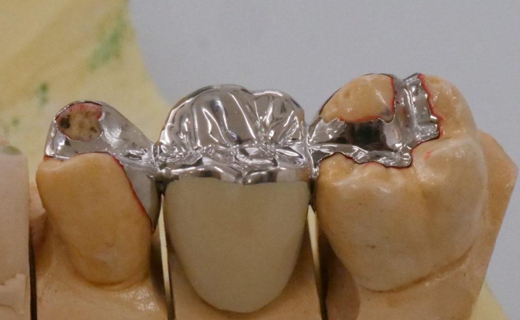 「接着ブリッジ」を外側から見た状態。白い部分は人工歯(C)M.IWASAWA