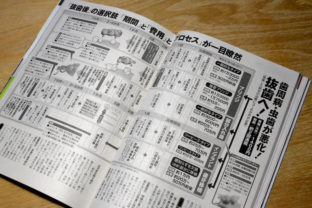 週刊ポスト6/28号 「歯が抜けた 費用と期間どれだけかかるか」(C)M.IWASAWA